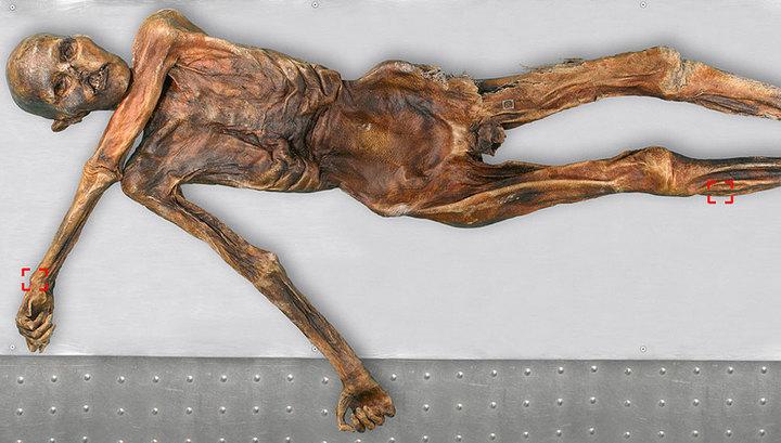 Ötzi, la autopsia del hombre de los hielos